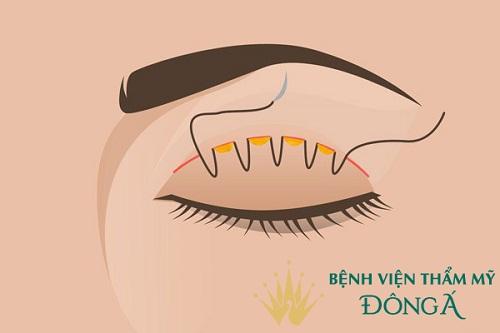 5 Cách Nhấn mí mắt tại nhà HÔ BIẾN đôi mắt Chuẩn Đẹp Ko phẫu thuật 5