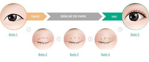 5 Cách tạo mí mắt Đơn Giản - Hiệu Quả giúp đôi mắt to tròn & quyến rũ 4