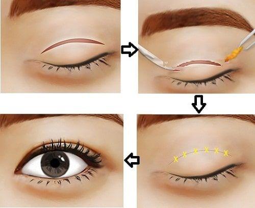 5 cách tạo mí mắt giúp bạn có đôi mắt to tròn và quyến rũ hơn 6