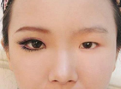 Top 3 cách chữa trị mắt to mắt nhỏ tại nhà HIỆU QUẢ bất ngờ 5