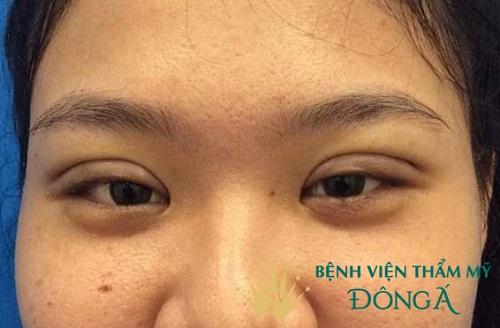 Chuyên gia tư vấn: Cắt chỉ mí mắt có đau không & thời gian hợp lý cắt chỉ 3