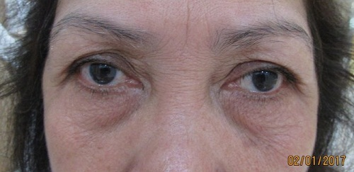 Cắt da chùng mí mắt An Toàn cho đôi mắt TƯƠI TRẺ đẩy lùi lão hóa 2