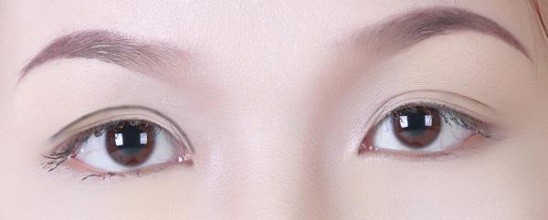 Cắt da chùng mí mắt An Toàn cho đôi mắt TƯƠI TRẺ đẩy lùi lão hóa 1