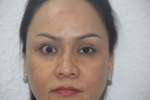 Cắt mí mắt bị sâu - Nguyên nhân & giải pháp khắc phục an toàn hiệu quả 2
