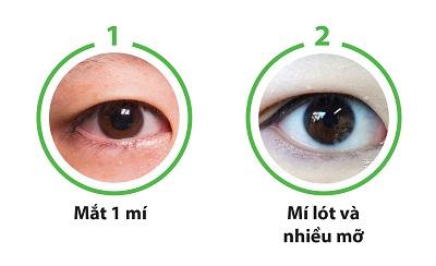 Cắt mắt to tròn chỉ sau 60p với công nghệ độc quyền Eye Lift 7