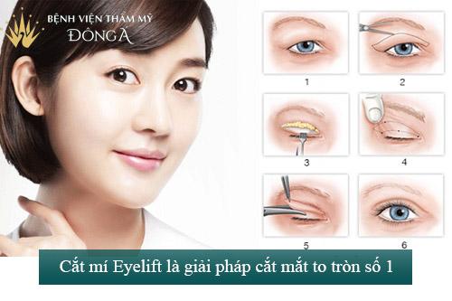 Cắt mắt to tròn chỉ sau 60p với công nghệ độc quyền Eye Lift 9