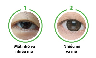 Cắt mắt to tròn chỉ sau 60p với công nghệ độc quyền Eye Lift 8