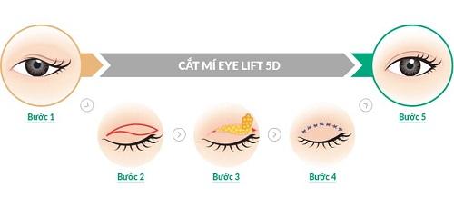 Cắt mắt to tròn chỉ sau 60p với công nghệ độc quyền Eye Lift 10