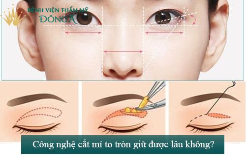 Cắt mắt to tròn chỉ sau 60p với công nghệ độc quyền Eye Lift 11