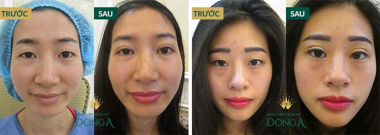 Hình ảnh khách hàng trước - sau thẩm mỹ mắt tại Bệnh viện thẩm mỹ Đông Á