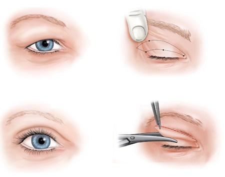Cắt mí bao lâu thì hết sẹo để mắt to đẹp tự nhiên? Chuyên gia giải đáp 1