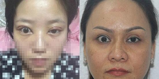 5 Trường hợp cắt mí bị hỏng - Nguyên nhân & Cách xử lý Hiệu Quả 10