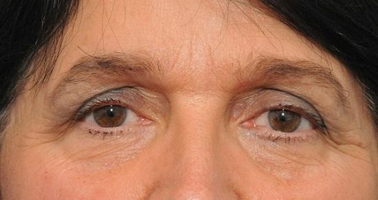 5 Trường hợp cắt mí bị hỏng - Nguyên nhân & Cách xử lý Hiệu Quả 12