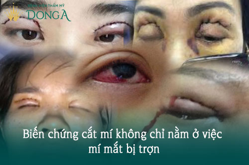 Cắt mí mắt bị trợn - Nguyên nhân & Cách khắc phục Hiệu Quả, An Toàn 3