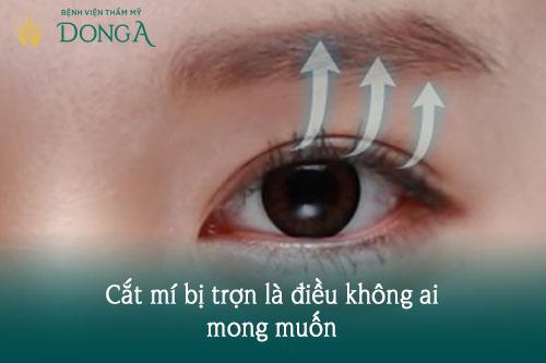 Cắt mí mắt bị trợn - Nguyên nhân & Cách khắc phục Hiệu Quả, An Toàn 1