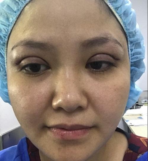 Cắt mí mắt có đau không, có để lại sẹo không & bao lâu thì lành? 2
