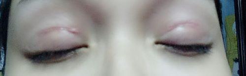 Cắt mí có để lại sẹo không? Lưu ý để mắt không để lại sẹo sau cắt mí 2