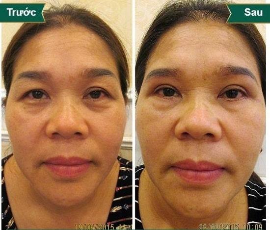 Hình ảnh cắt mí mắt sau 1 tuần, 1 tháng, 2 tháng sẽ thay đổi như thế nào? 9