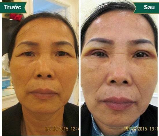 Hình ảnh cắt mí mắt sau 1 tuần, 1 tháng, 2 tháng sẽ thay đổi như thế nào? 10