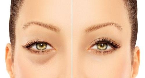 Công nghệ cắt mí Eye Lift độc quyền cho đôi mắt trẻ hóa toàn diện 1