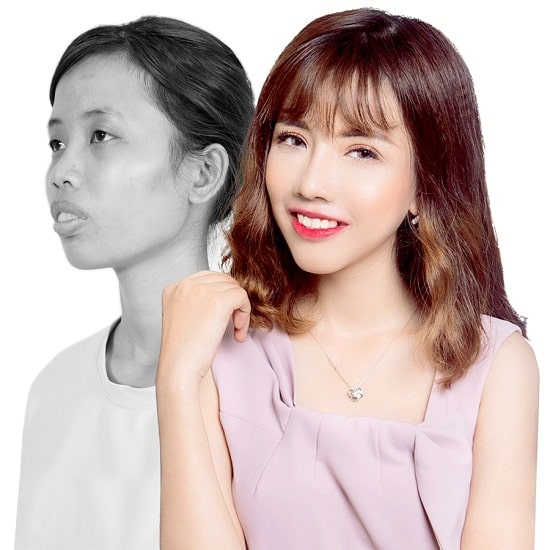Cắt mí Eye Lift Hàn Quốc là gì? Vì sao lại khiến chị em MÊ MẨN đến thế 6