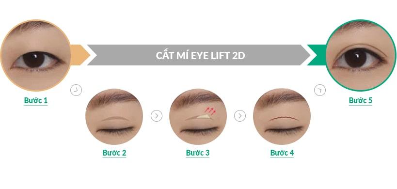 Cắt mí Eye Lift 2D - hết lo mỡ thừa cho đôi mắt đẹp rạng ngời sau 30p 2