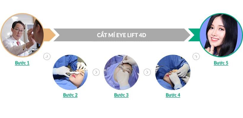 Cắt mí Eye Lift 4D cho đôi mắt đẹp tự nhiên 2 mí rõ nét hoàn hảo 2
