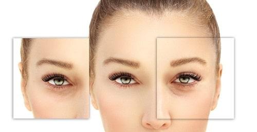 Công nghệ cắt mí Eye Lift độc quyền cho đôi mắt trẻ hóa toàn diện 3