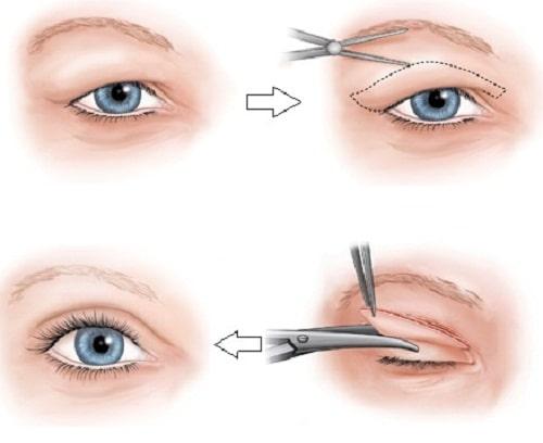 Công nghệ cắt mí Eye Lift độc quyền cho đôi mắt trẻ hóa toàn diện 2