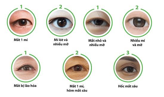 Công nghệ cắt mí Eye Lift độc quyền tại Đông Á đôi mắt trẻ hóa toàn diện