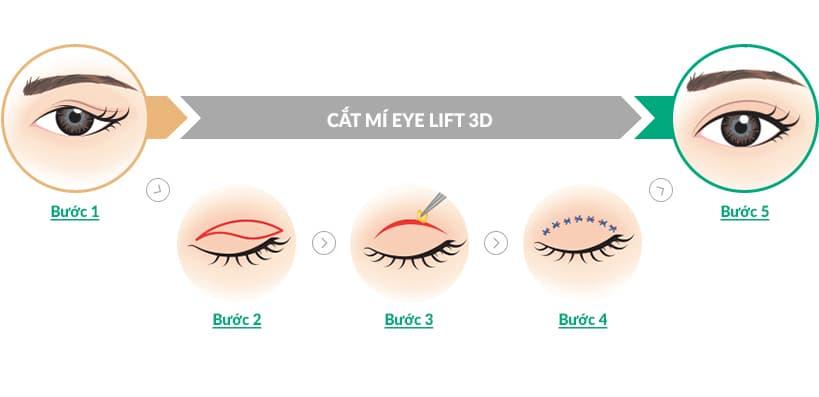 Cắt mí Eye Lift 3D an toàn cho đôi mắt đẹp tươi trẻ cuốn hút chỉ sau 30p 2