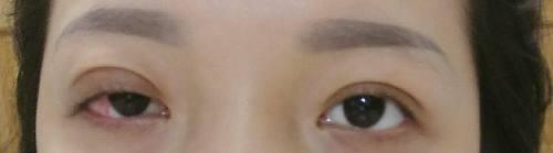 Cắt mí không nhắm được mắt - Nguyên nhân & Cách khắc phục 1
