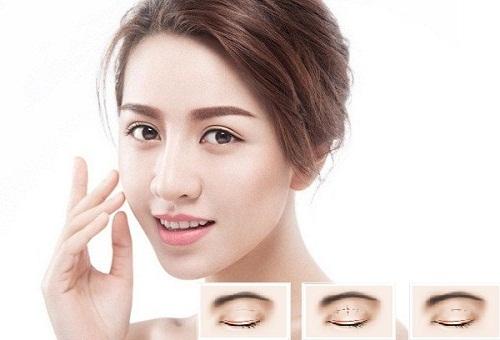 Phẫu thuật thẩm mỹ cắt mí mắt An Toàn - Hiệu Quả cho đôi mắt TO ĐẸP 2