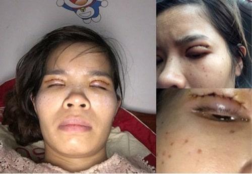 Phẫu thuật thẩm mỹ cắt mí mắt An Toàn - Hiệu Quả cho đôi mắt TO ĐẸP 4