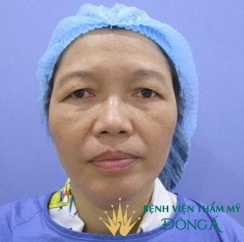 Phẫu thuật thẩm mỹ cắt mí mắt An Toàn - Hiệu Quả cho đôi mắt TO ĐẸP 3