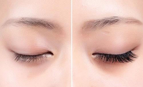 Cắt mí mắt sau bao lâu thì có thể trang điểm, nối mi, rửa mặt được? 4