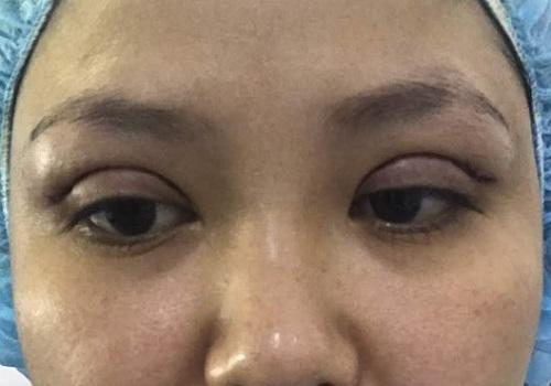 Cắt mí mắt bị bầm tím - Nguyên nhân & cách khắc phục Kịp Thời hiệu quả 3