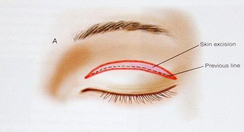 Cắt mí mắt bị bầm tím, bị thâm - Nguyên nhân & Cách khắc phục 2