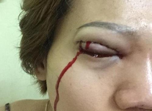 Cắt mí mắt bị bầm tím - Nguyên nhân & cách khắc phục Kịp Thời hiệu quả 5