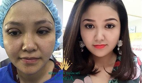 Cắt mí mắt bị bầm tím, bị thâm - Nguyên nhân & Cách khắc phục 4