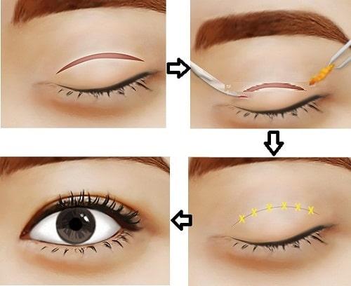 Cắt mí mắt bị sâu - Nguyên nhân & cách khắc phục lấy lại nếp mí cân đối 1