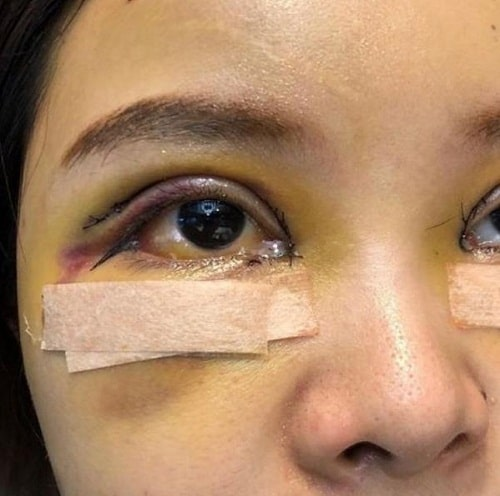 Cắt mí mắt bị sâu - Nguyên nhân & cách khắc phục lấy lại nếp mí cân đối 3
