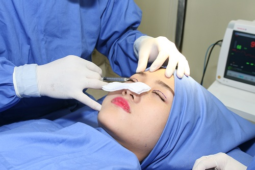 Cắt mí mắt có an toàn không? Có ảnh hưởng đến sức khỏe đôi mắt? 4