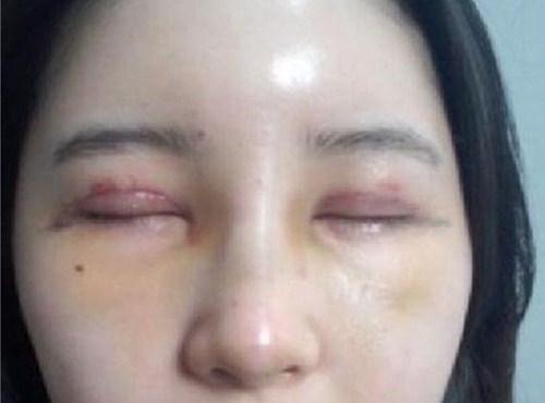 Cắt mí mắt có nguy hiểm không & có ảnh hưởng đến thẩm mỹ về sau? 2