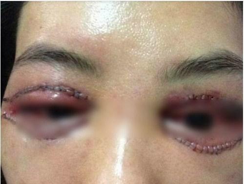 Cắt mí mắt có nguy hiểm không & có ảnh hưởng đến thẩm mỹ về sau? 1