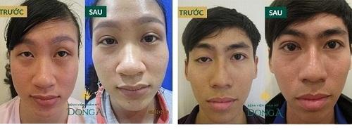 Công nghệ cắt mí mắt đẹp tự nhiên - Giúp mắt TO ĐẸP đạt tỷ lệ VÀNG 7