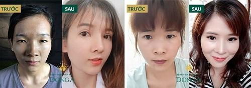 Công nghệ cắt mí mắt đẹp tự nhiên - Giúp mắt TO ĐẸP đạt tỷ lệ VÀNG 6