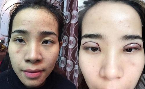 Công nghệ cắt mí mắt đẹp tự nhiên - Giúp mắt TO ĐẸP đạt tỷ lệ VÀNG 3