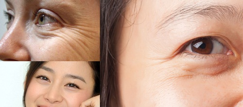 Phẫu thuật cắt mí mắt dưới An Toàn cho đôi mắt TRẺ ĐẸP hài hòa 1