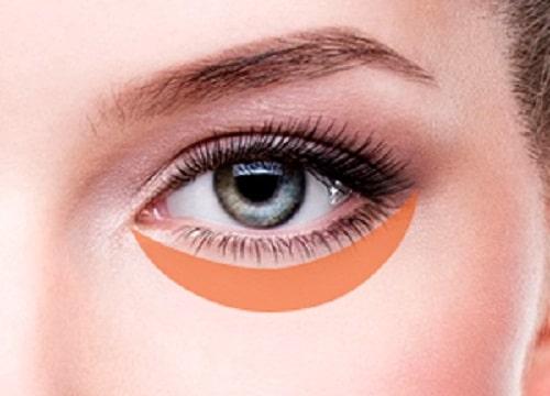 Phẫu thuật cắt mí mắt dưới An Toàn cho đôi mắt TRẺ ĐẸP hài hòa 2